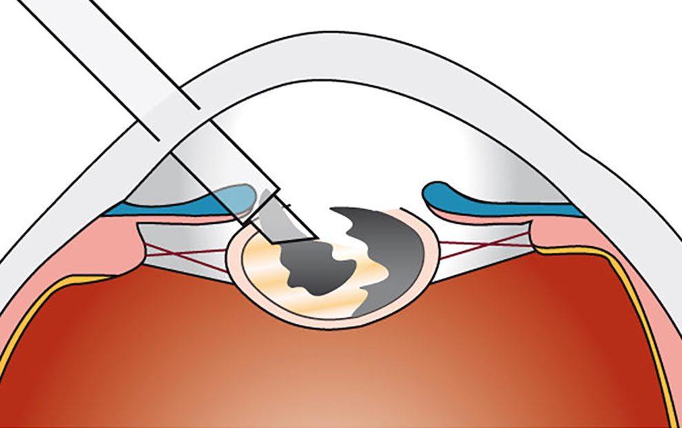 Verflüssigung (Phakoemulsifikation) und Absaugen der Linse
