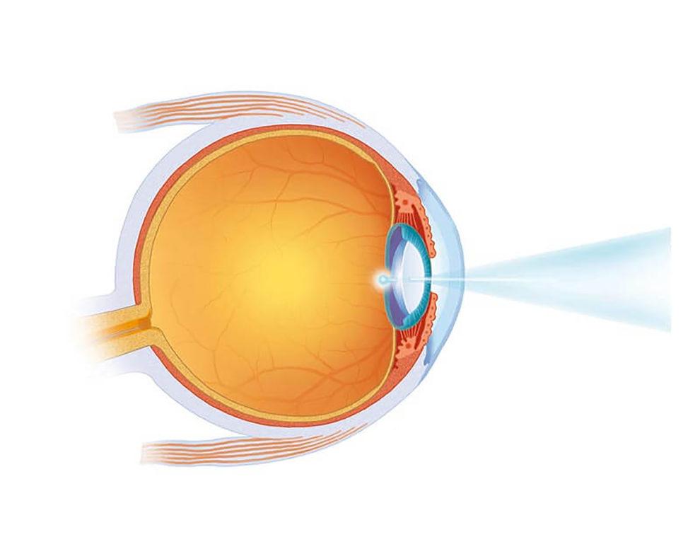 Behandlung des Nachstars mittels Laser