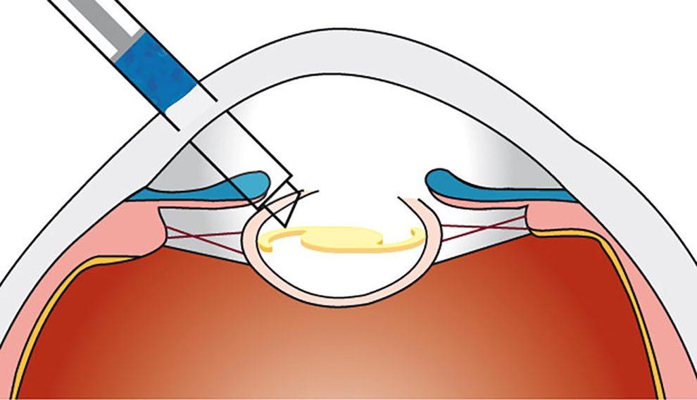 Einbringen der Kunstlinse