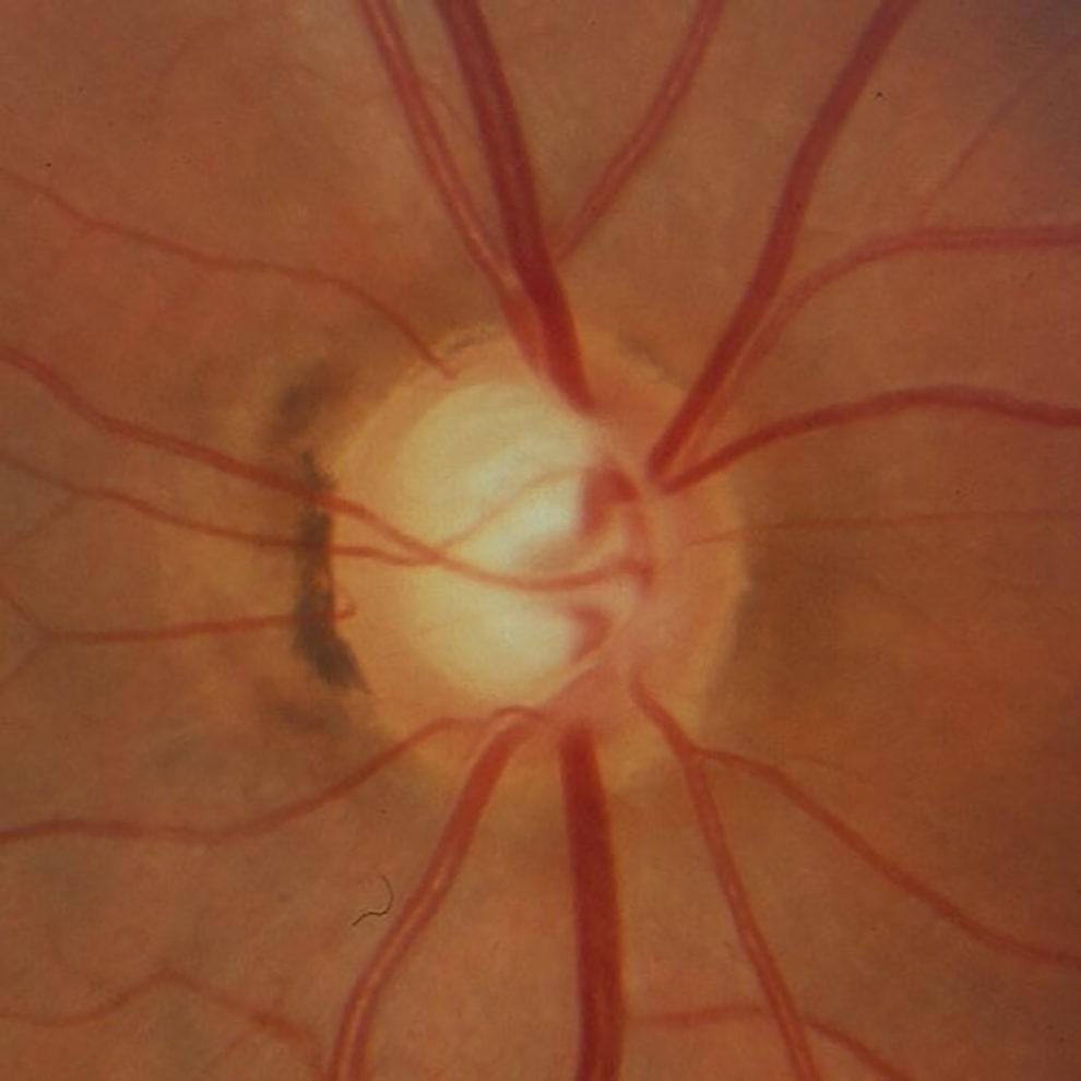 Sehnervenkopf mit glaukomatöser Schädigung