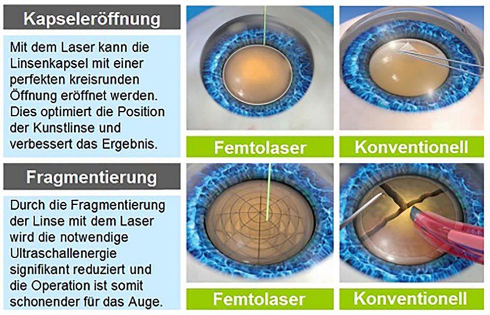 Kataraktoperation mit Laser
